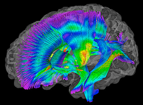 White matter pathways in the brain (warmer colors) depict fractional anisotropy