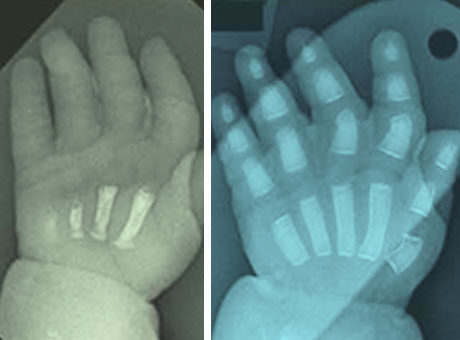 A hand-to-hand comparison of bone formation.