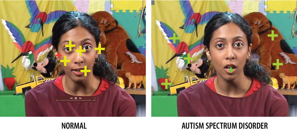 Eye tracking: The way young children explore the world with their eyes is under strict genetic control. When comparing the viewing habits of kids, patterns emerge. Bottom left, as illustrated by the crosshairs, normally developing children typically focus on people's faces, particularly eyes and mouths. In atypical development, children fixate on inanimate objects. Identifying this lack of social engagement is a useful tool in early diagnosis.